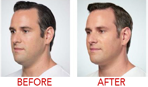 lose chin fat before after image male